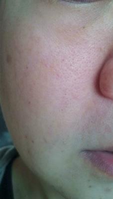 ヒアロジー 洗顔