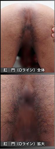 石橋さん(高橋さん)before