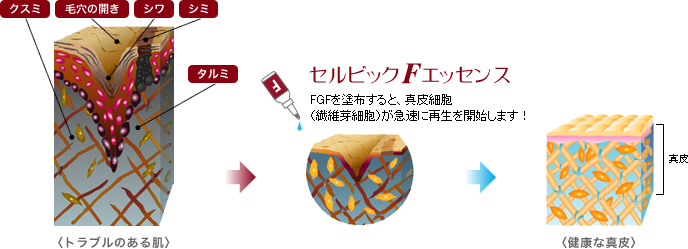 FGFの効果