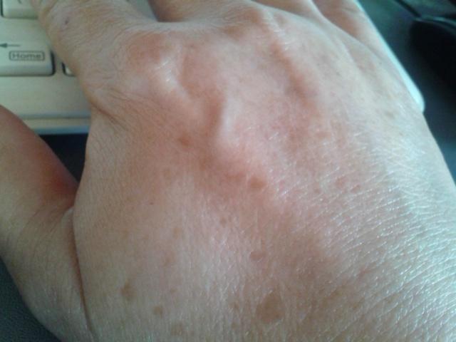 フィットリスト つけた手の甲