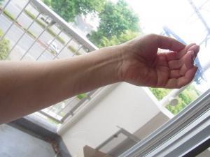 プルプル手縮小
