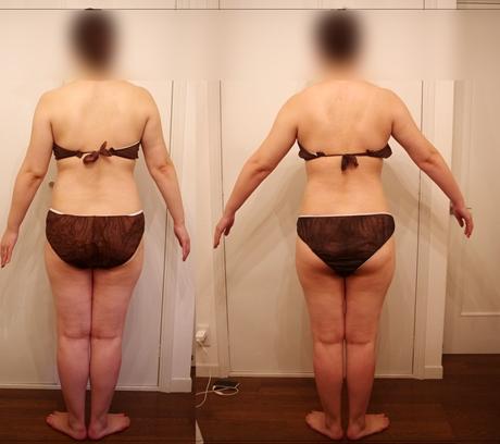 筋膜リリースセラピーで痩せる