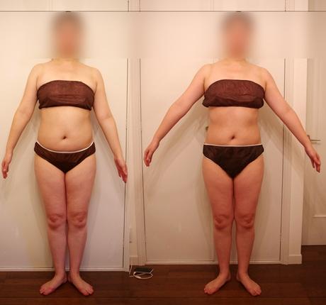 筋膜リリースセラピーで痩せる2