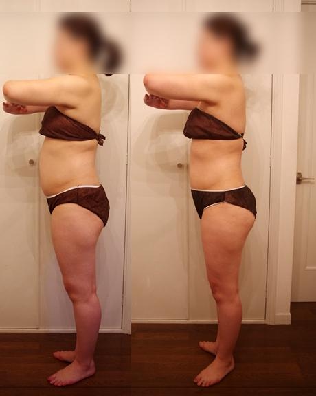 筋膜リリースセラピーで痩せる3