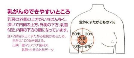 乳がんの出来やすい位置