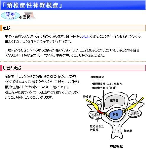 頚椎神経根症